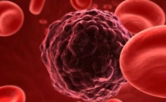 Novo tratamento contra o câncer poderá substituir a quimioterapia
